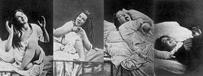 Victorian woman with 'hysteria'